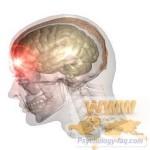Черепно мозговая травма. Эзотерические причины